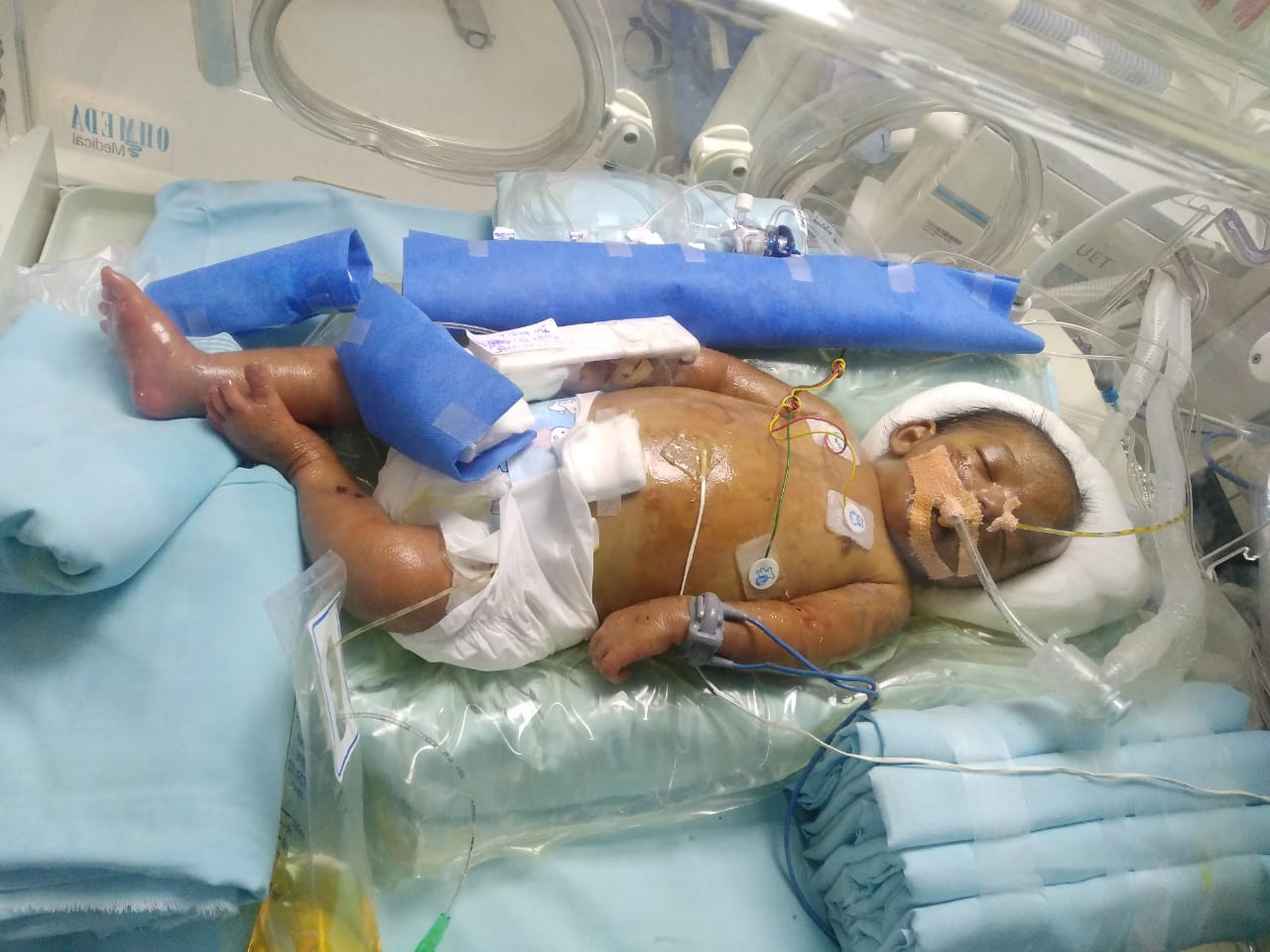 16days baby suffering with severe sepsis